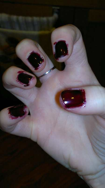 bloody fingernails